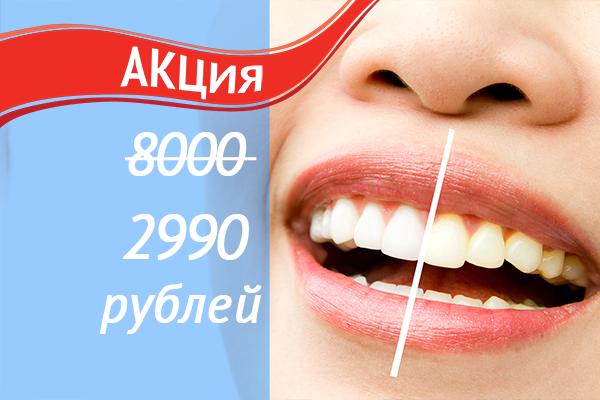 """Отбеливание зубов - услуги сети стоматологий """"Добрая стоатология"""""""