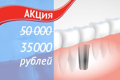 """Установка импланта - услуги сети стоматологий """"Добрая стоатология"""""""