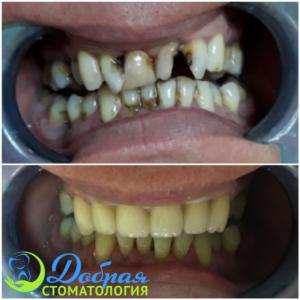 Сеть стоматологий - Добрая стоматология в Воронеже