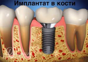 Имплантат или мостовидный протез - рисунок имплантата