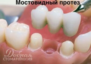 Имплантат или мостовидный протез - рисунок мостовидного протеза