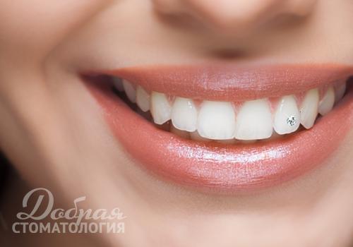 Скайсы на зубы в Доброй стоматологии в Воронеже